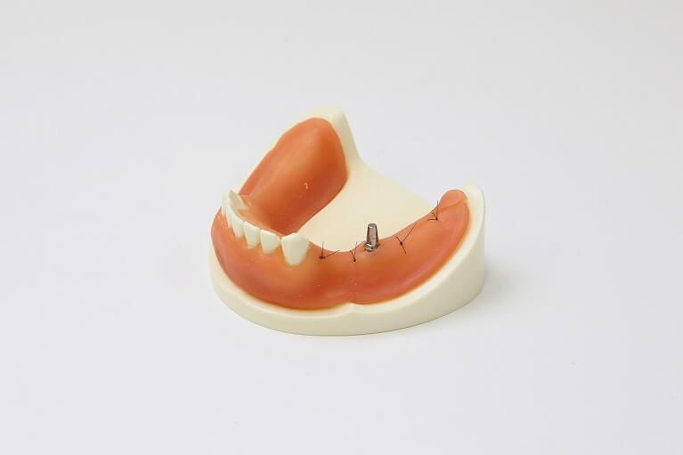 人工歯の製作、取り付け